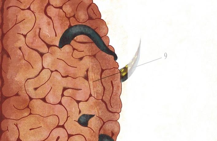 cervello-vermi